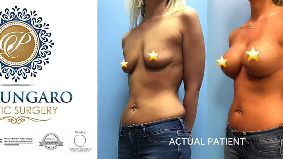 How Much Breast Augmentation Cost Petrungaro Plastic Surgery