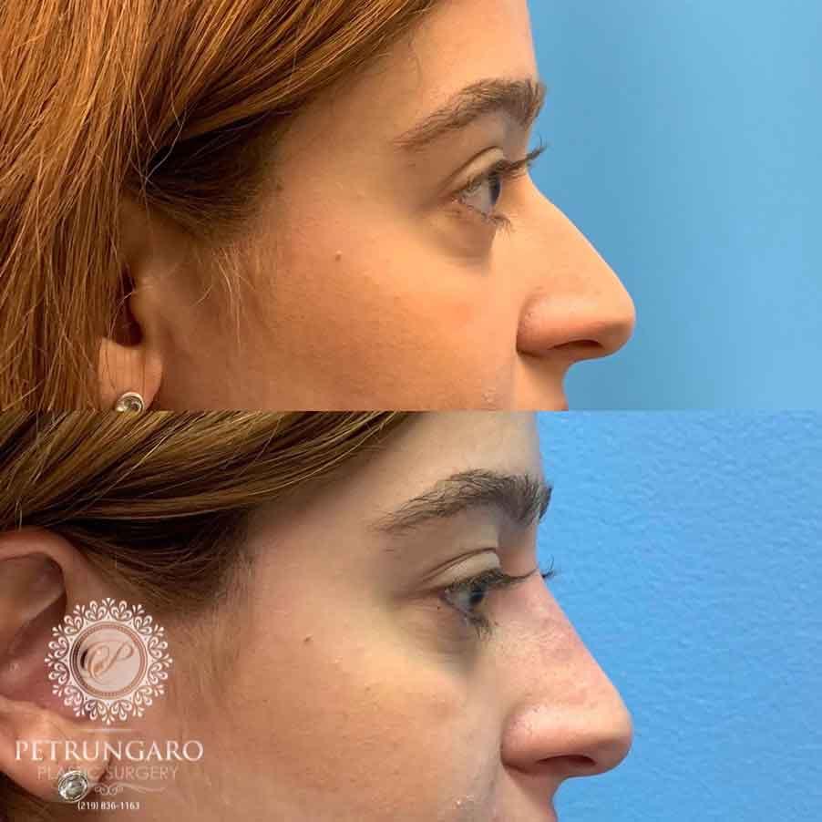 21 F After Nonsurgical Nose Job Petrungaro Plastic Surgery
