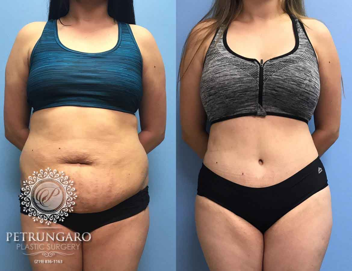 24 F After Tummy Tuck With Lipo 360 Petrungaro Plastic Surgery