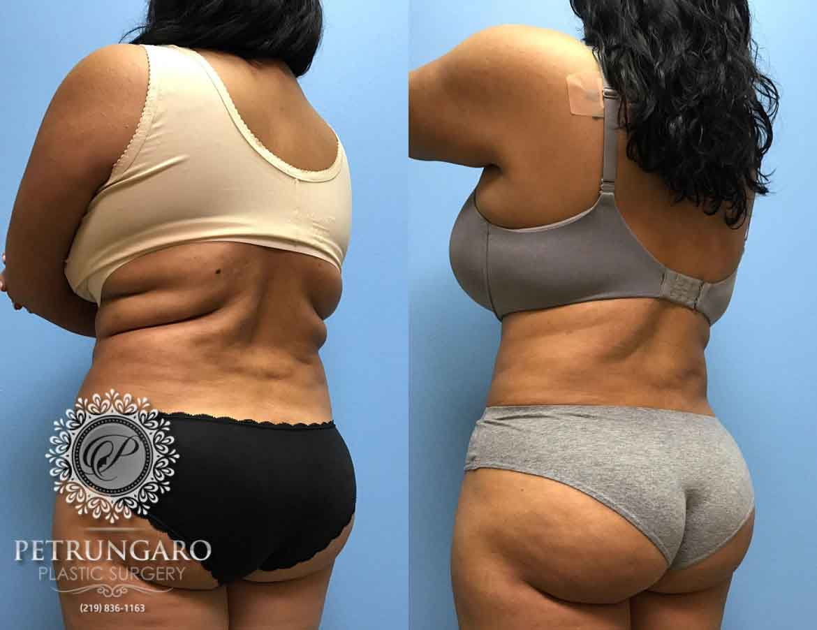 38 F Before And After Liposuction Petrungaro Plastic Surgery