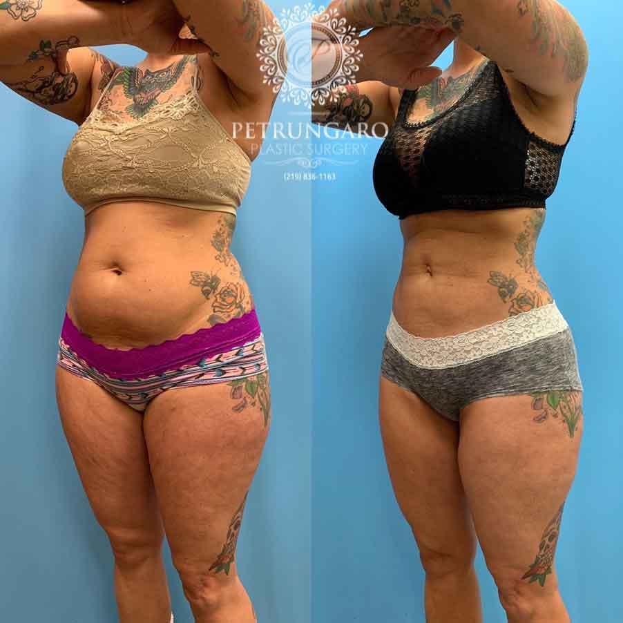 42 Woman 5 Months After Lipo 360 Petrungaro Plastic Surgery