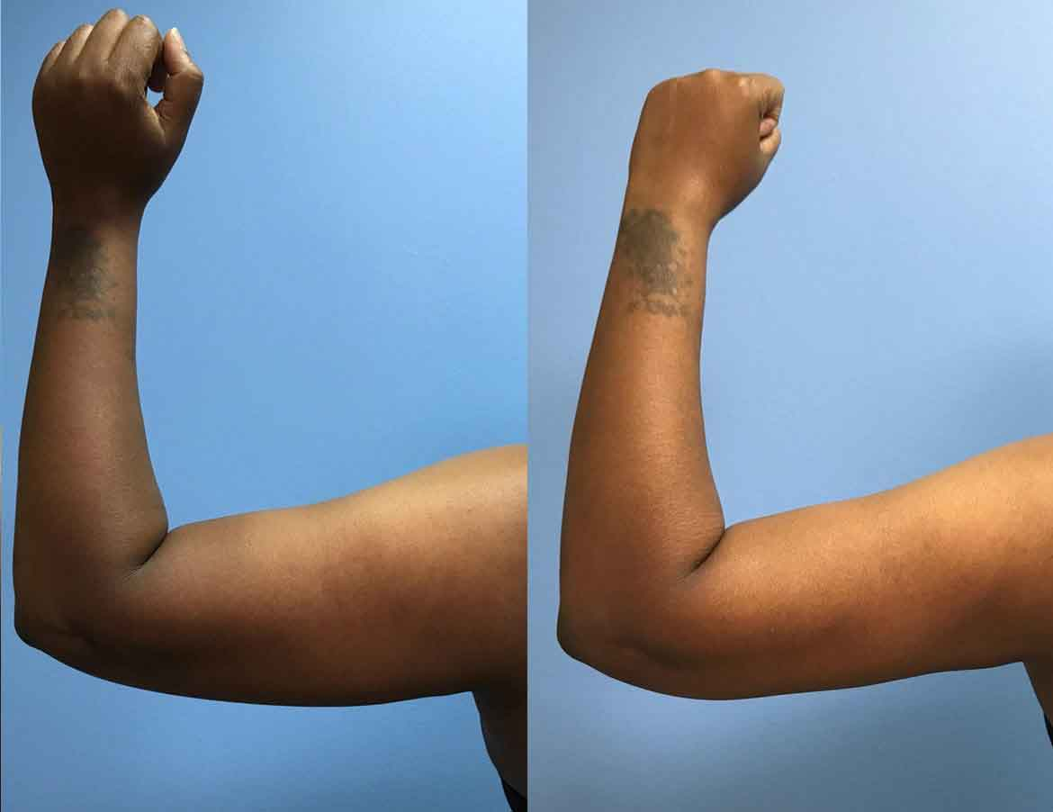 43 F After Liposuction Of Upper Arms Petrungaro Plastic Surgery