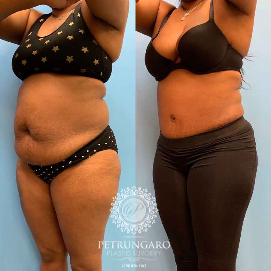 44 Woman After Tummy Tuck W Lipo 360 Petrungaro Plastic Surgery