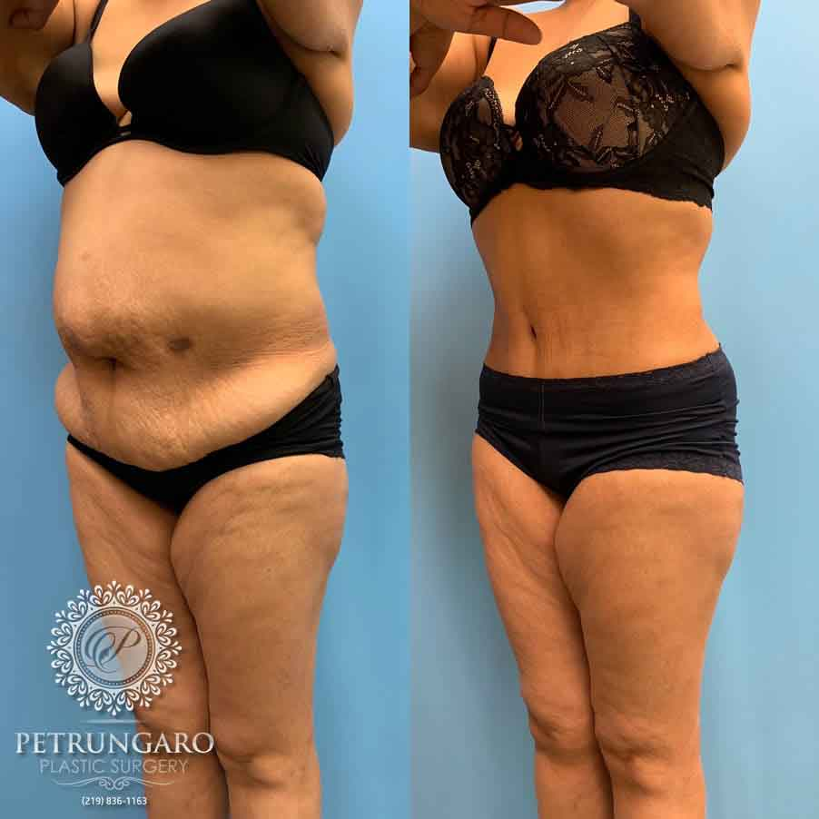 52 F After Tummy Tuck With Lipo 360 Petrungaro Plastic Surgery