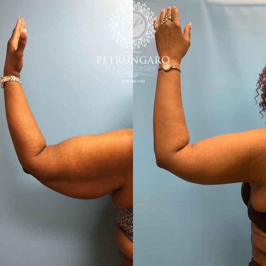 53 F After Arm Lift With Liposuction Petrungaro Plastic Surgery