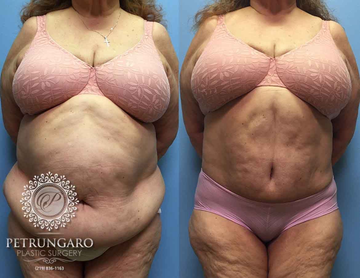 66 F After Tummy Tuck With Lipo 360 Petrungaro Plastic Surgery