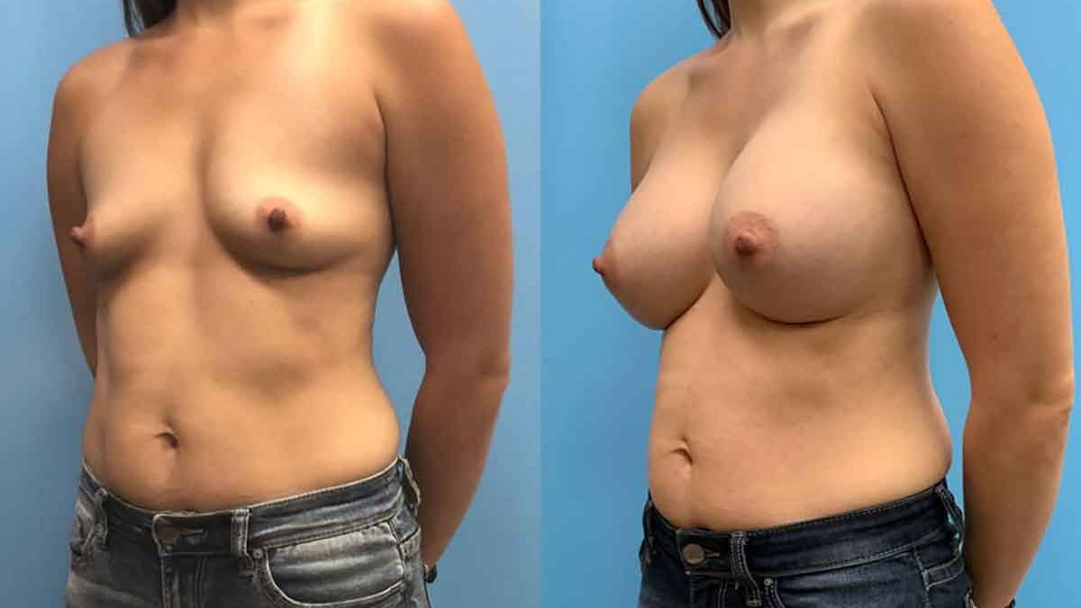 Can i have a breast reduction and implants