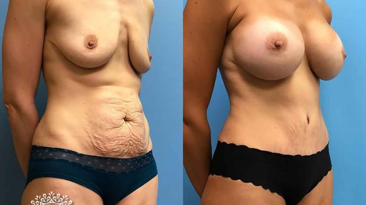 Losing weight before breast augmentation
