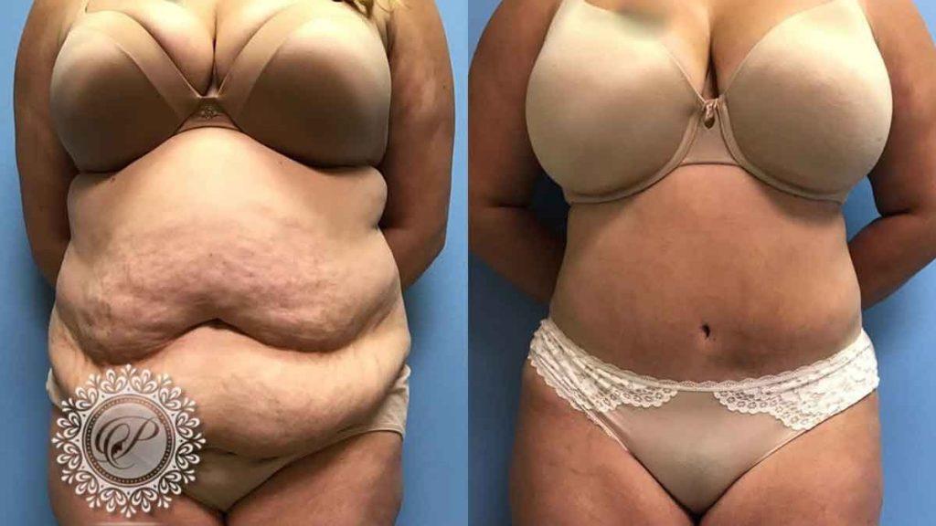 Где накапливается жир у полных людей фото