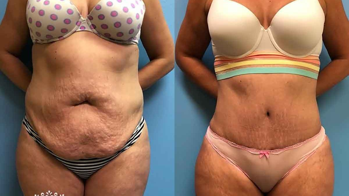 Tummy Tuck Swelling Weight Gain Petrungaro Plastic Surgery