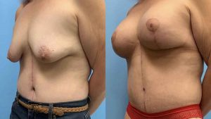 Breast Lift Chicago Nw Indiana Petrungaro Plastic Surgery
