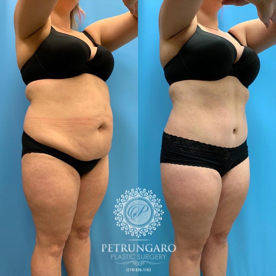 33 Before After Tummy Tuck Lipo 360 Petrungaro Plastic Surgery